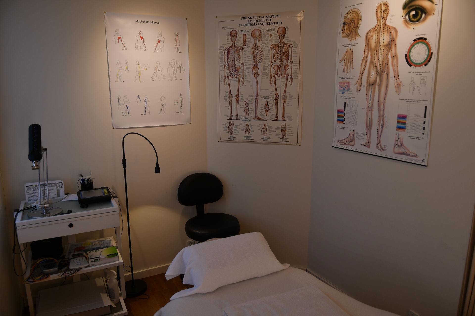 Brise Akupunktur